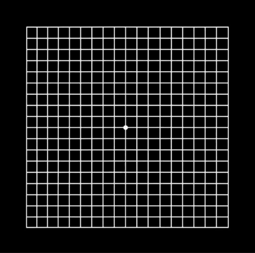 Amsler Grid Test - Liana Engelbrecht Optometrist Image 3
