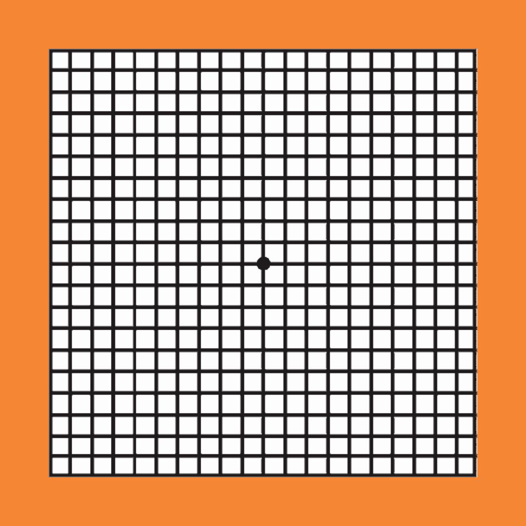 Amsler Grid Test - Liana Engelbrecht Optometrist Image 2