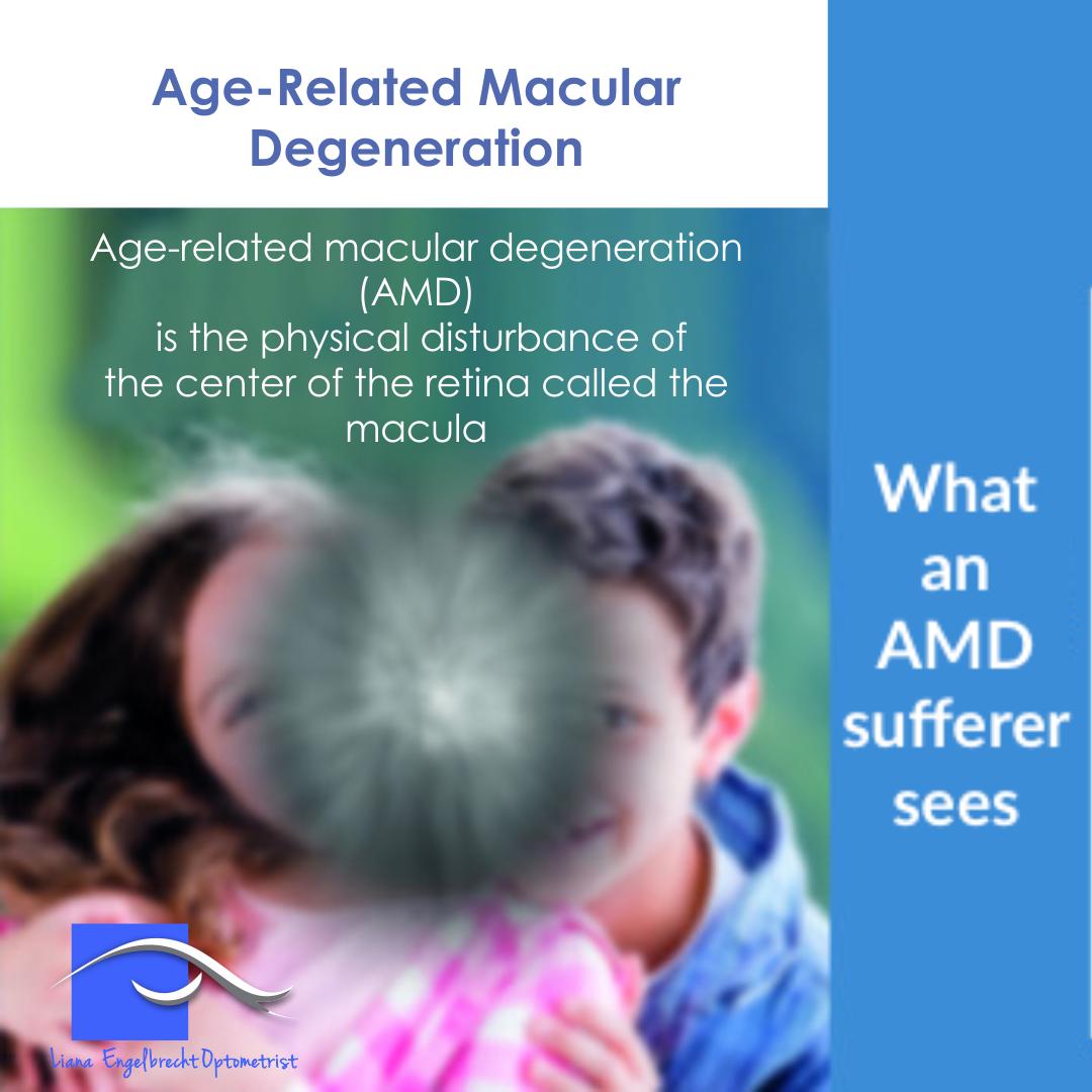 Age-Related Macular Degeneration Patient Education Liana Engelbrecht Optometrist