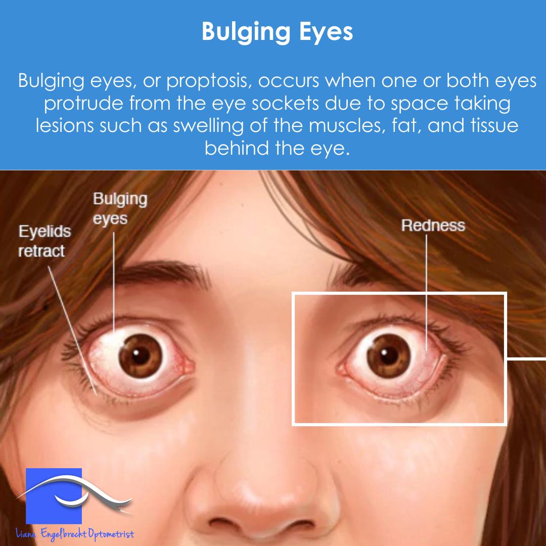 Bulging Eye Patient Education Liana Engelbrecht Optometrist