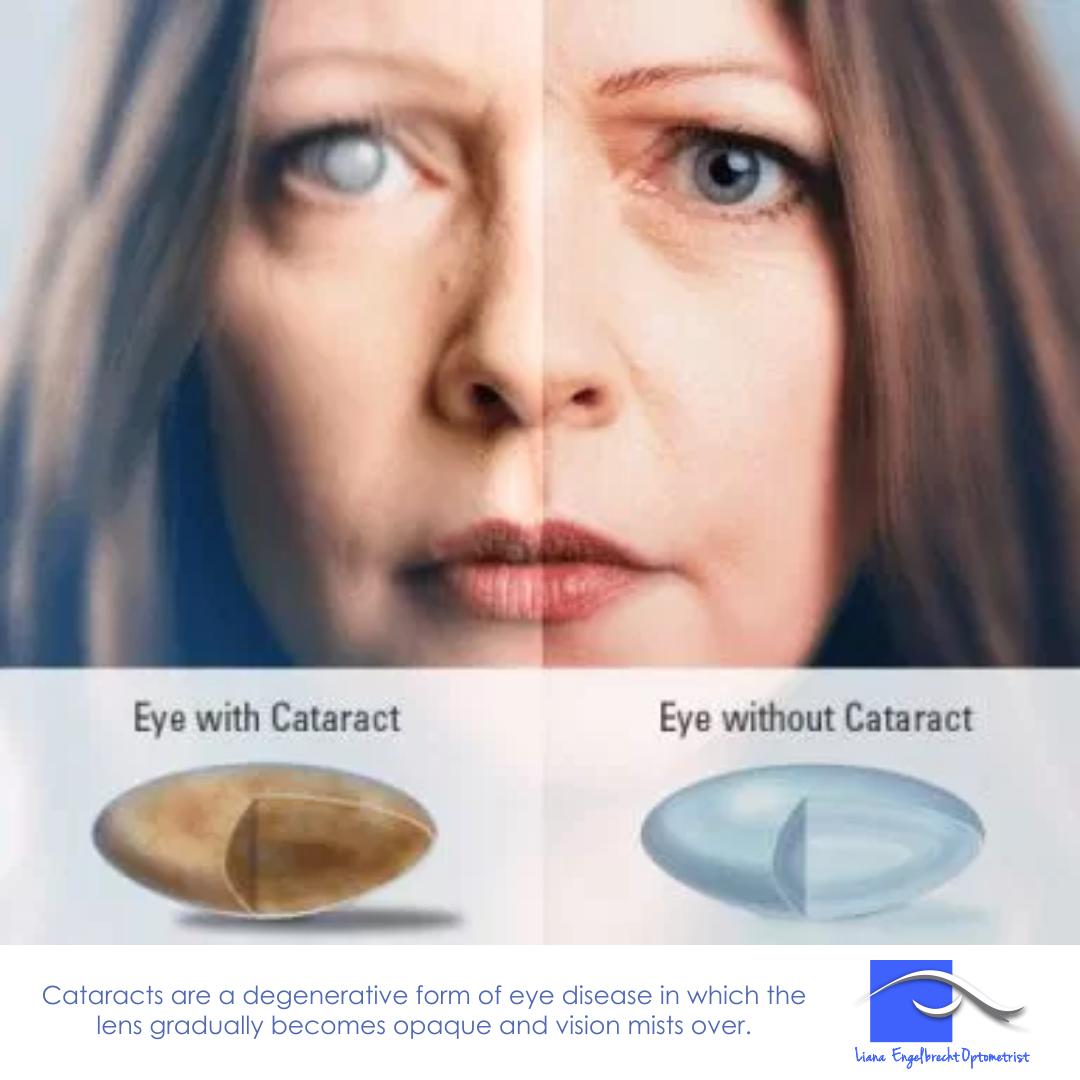 Cataracts Patient Education Liana Engelbrecht Optometrist
