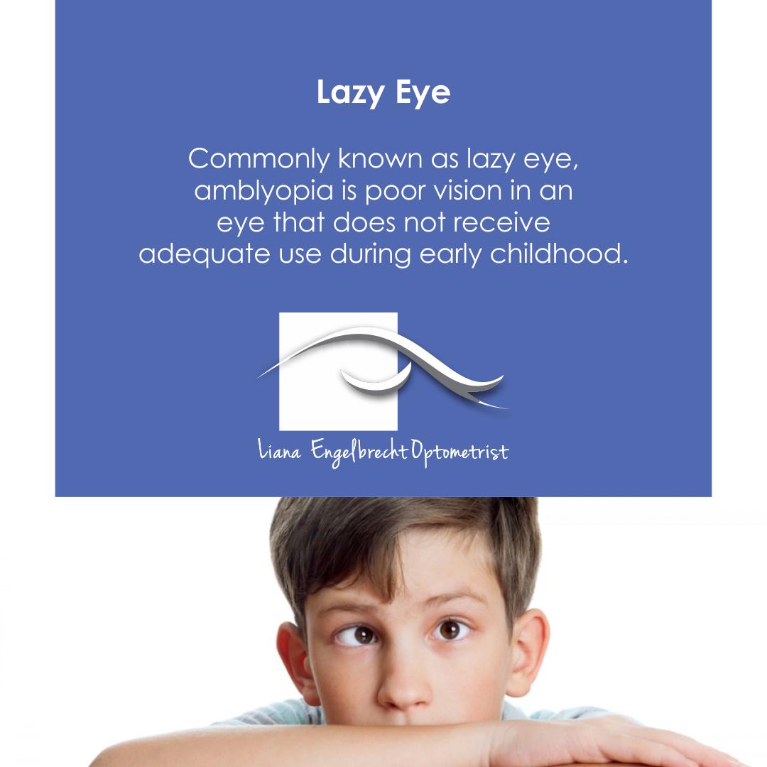 Lazy Eye Patient Education Liana Engelbrecht Optometrist