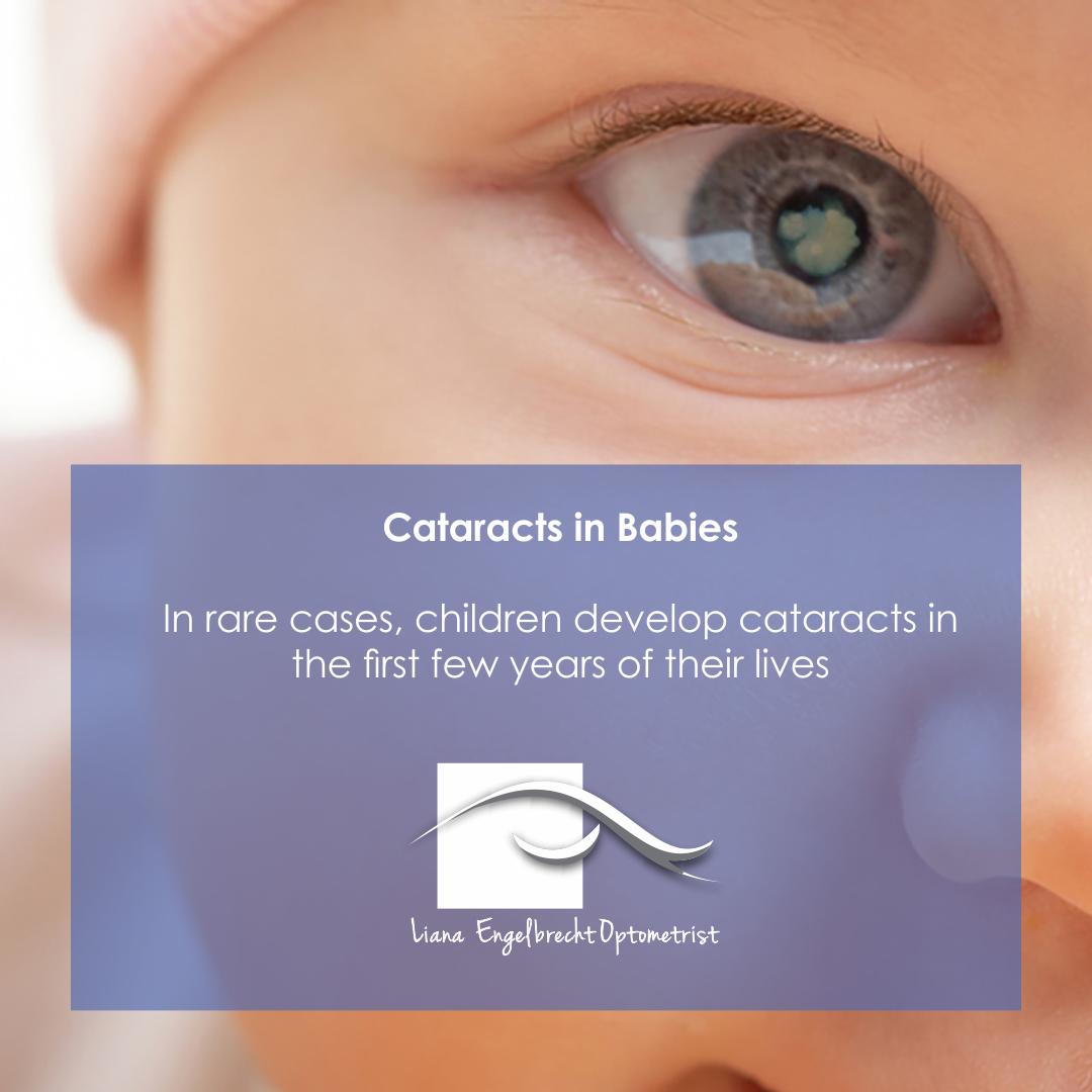 Cataracts in babies Patient Education Liana Engelbrecht Optometrist